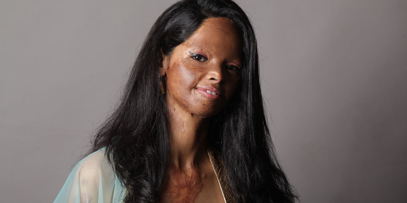 Young girl with long dark hair smiling with some burns on her face - Laxmi Agarwal